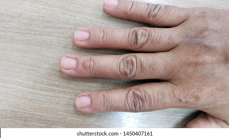 Cyst Images, Stock Photos & Vectors | Shutterstock