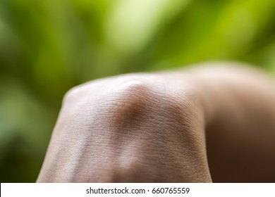 Ganglion cysts of the woman hand and wrist, Surgical Sciences