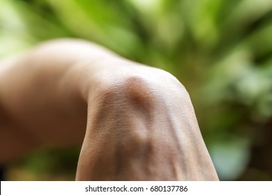 Ganglion cysts wrist horizontal image