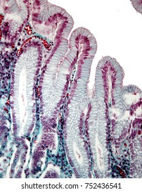 Gastric mucosa stained with the Masson trichrome stain. The surface epithelium of the stomach invaginates to form the gastric pits. It is a simple columnar epithelium formed by mucous cells.