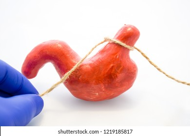 Gastric or stomach banding surgery for weight loss or treatment of diaphragmatic hernia concept photo. Doctor pinched anatomical model of stomach using rope, preventing flow of food, showing procedure