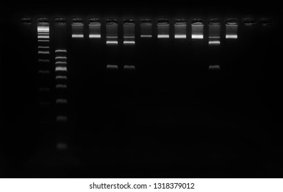 genomic dna band is running by gel electrophoresis molecular technique. PCR-RFLP technique, DNA extraction, pcr products and molecular analysis.