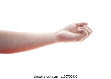 German measles,Rubella skin on the human arm. Concept of medical care.