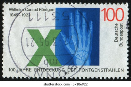 GERMANY- CIRCA 1995: stamp printed by Germany, shows Roentgen hand, circa 1995.