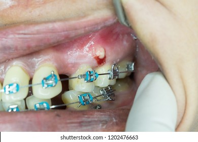 gingival abscess from orthodontic mini screw infection