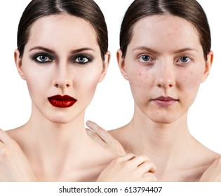 Girl with acne before and after bright make-up.