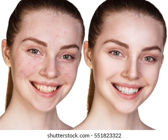 Girl with acne before and after treatment.