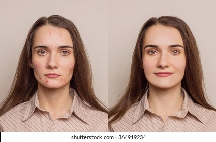 girl with acne on the face - a problem skin