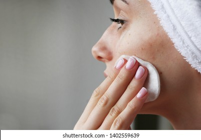 girl with acne on face rubs face tonic