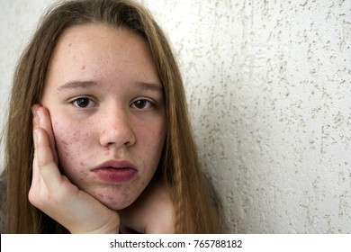 Girl with acne on the face.The girl is worried about acne on her face. The girl suffers from acne on her face. Girl with problem skin. Acne on the face.
