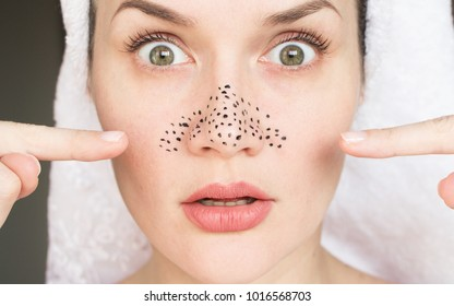 girl with acne on her nose