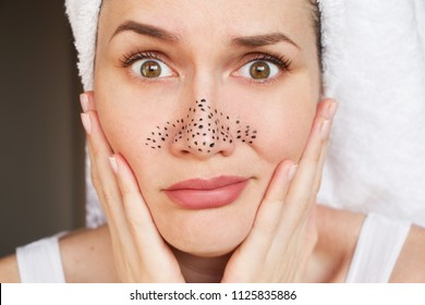 girl with acne on the nose, acne