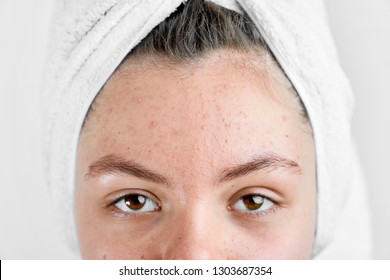 Girl after spa in white towel with acne problem skin puberty period problem face care
