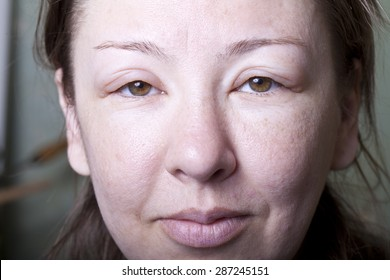 a girl with allergenic edema