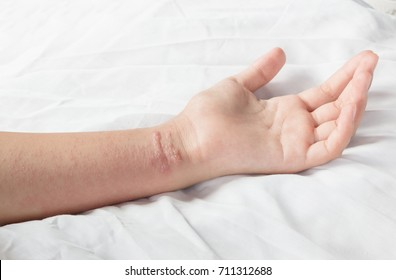 girl arm with Poison ivy rash on  white background