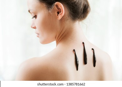 The girl with bloodsuckers on a back on a white background.