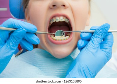 girl with braces at the reception at the dentist. Close-up. Hand in glove with a tool at the patient's teeth.