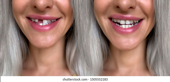 A girl with a broken front tooth removes and puts on a microprosthesis. Tooth implantation.