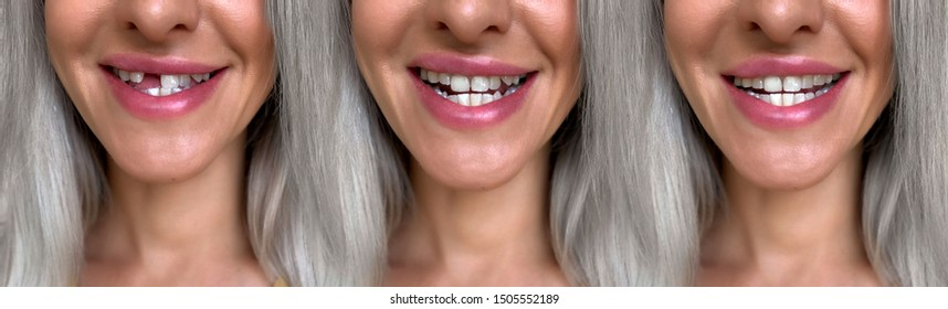 A girl with a broken front tooth removes and puts on a microprosthesis. Tooth implantation.Tooth alignment.