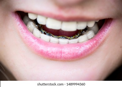 the girl demonstrates internal lingual invisible braces, orthodontic treatment, alignment of teeth, mouth shot close-up, blurred background, smile without complexes