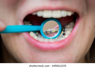 the girl in the dental mirror shows internal lingual invisible braces, her mouth is shot close-up, blurred background, smile without complexes
