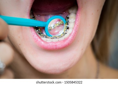 the girl in the dental mirror shows internal lingual invisible braces, her mouth is shot close-up, blurred background, smile without hesitation