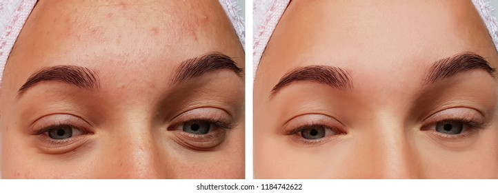 girl eye treatment, before and after procedures, acne
