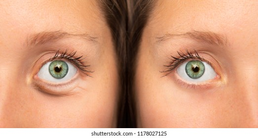 Girl eyes before and after botox injection to remove eye bags