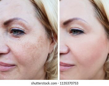 girl face wrinkles before and after, pigmentation