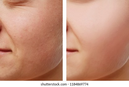 girl face wrinkles, before and after procedures, acne