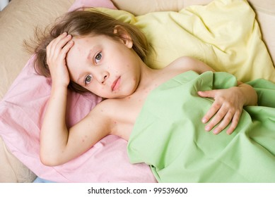 The girl fell ill with chickenpox