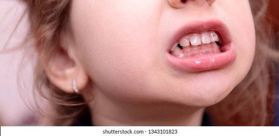 Girl has caries on teeth. Baby smile close up. Patient open mouth showing caries teeth decay. Dental healthcare.