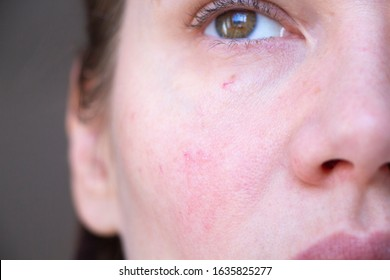 the girl has red capillaries on her face