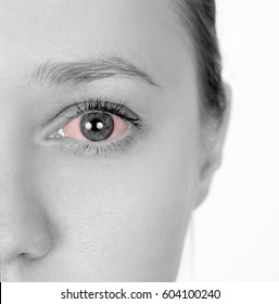 Girl has red eyes. Disease of the eyeball. Grey background