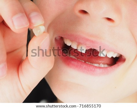 Girl holding a loose tooth between fingers whilst smiling with one upper tooth missing