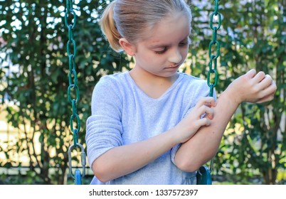 Girl interrupted from playing outdoors due to eczema; atopic dermatitis visible on arms, hands and face