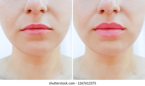 girl lips before and after magnification