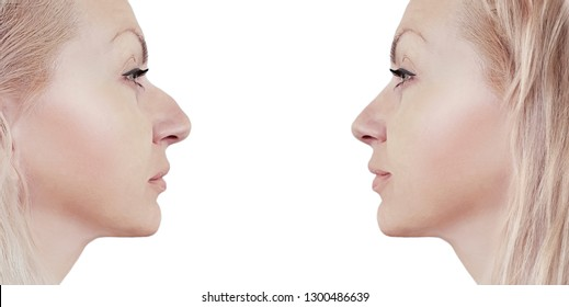 girl nose before and after correction