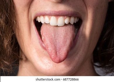 Girl on a check visit to detect candidiasis on tongue