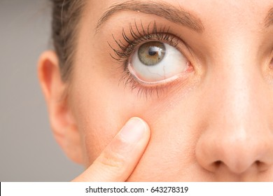 Girl opening her eye with the finger