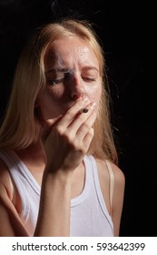 girl with pimple skin smoking joint with marijuana