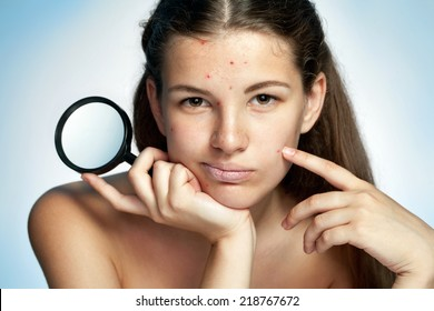 Girl with a pimply face holding magnifying glass. Woman skin care concept / photos of Latina girl on blue background