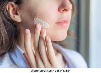 A girl with problematic skin and acne applies cream to her cheek skin. Pimples on the face without makeup and retouches. Close up. Natural skin care. Vegan cosmetics. Daylight home bathroom. Lifestyle