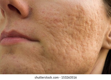Girl with problematic skin and acne scars
