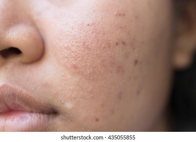 Enlarged Pores Images, Stock Photos & Vectors | Shutterstock