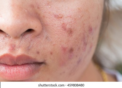 Acne Scars Images, Stock Photos & Vectors | Shutterstock