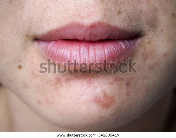 Girl with problematic skin and scars from acne