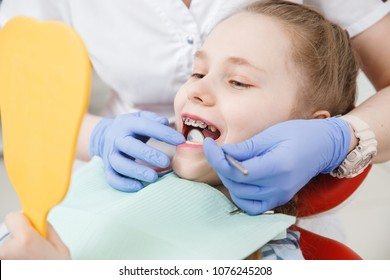 Girl at reception with dentist, conduct an examination of braces and state of enamel from caries.