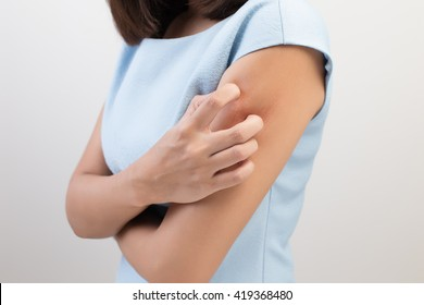 Girl scratch the itch with hand, Arm, Itch, Concept with Healthcare And Medicine.