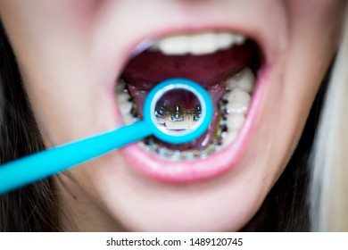 the girl shows in the dental mirror how invisible, upper internal lingual braces, orthodontic treatment look